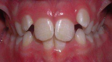 Riabilitazione Neuro Occlusale e terapia ortodontica: Case report – parte II