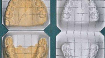 Riabilitazione Neuro Occlusale e terapia ortodontica: Case report – parte I
